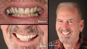 Rohnert Park Dentist Porcelain Veneers